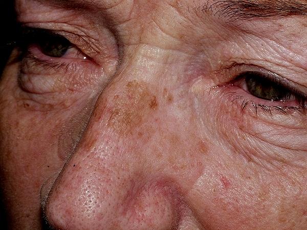 لکه های پیری ( لکه های تیره کوچک صورت و پشت دستهای)