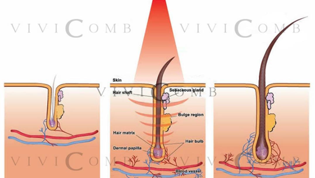 لیزر درمانی برای رشد مو